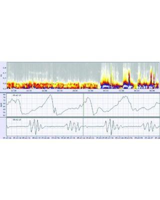 Schiller medilog Holter Floating Network License